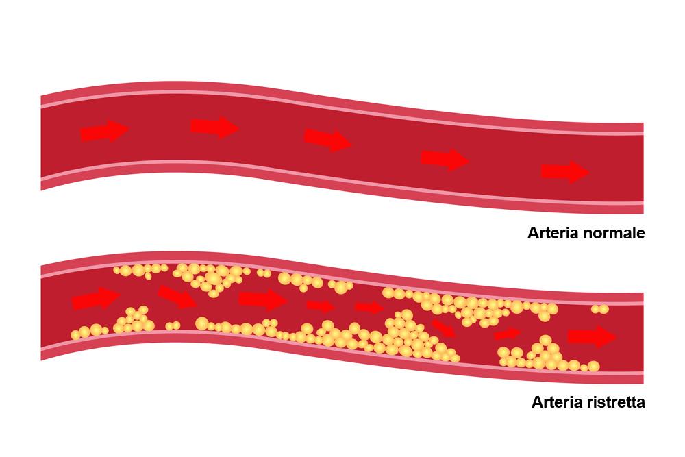 Cos'è il colesterolo